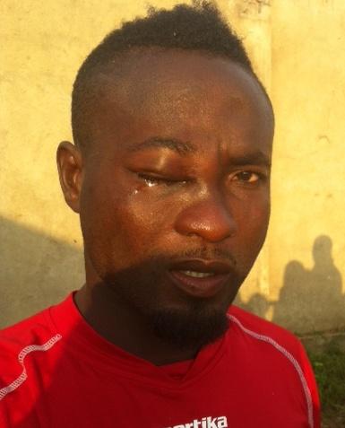 Inter Allies lash at 'biased' referee Andoh over eye injury to Tekyi Menson