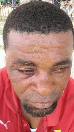 Brutalized coach Nana Andy Sinason