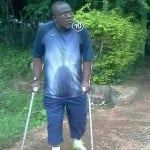 Amputated Bechem United team manager gets prosthetic leg