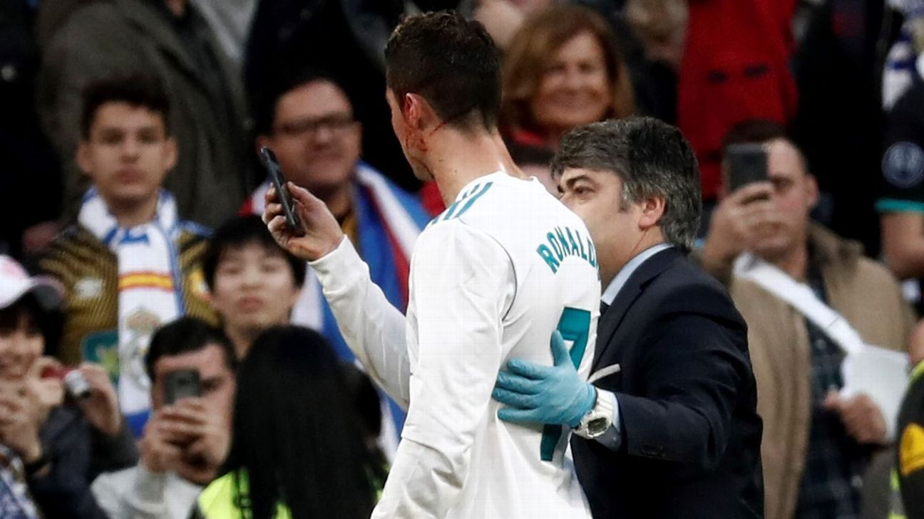 Cristiano Ronaldo uses phone to check head wound in Real's win vs. Deportivo