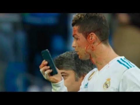 Ronaldo Head Was Crashed - 21.01.2017