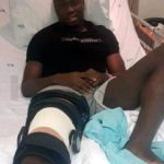 Azam FC defender Daniel Amoah out for three months with thigh injury
