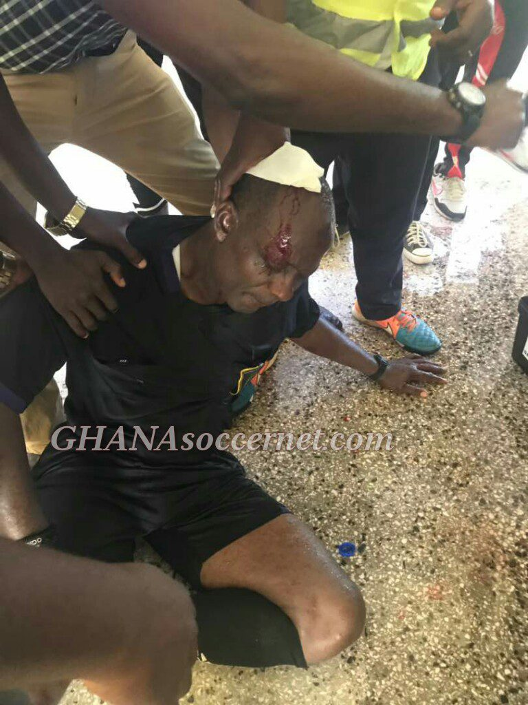 EXPOSED: Elmina Sharks in blatant lie over cause of injury to referee Liman in Medeama clash