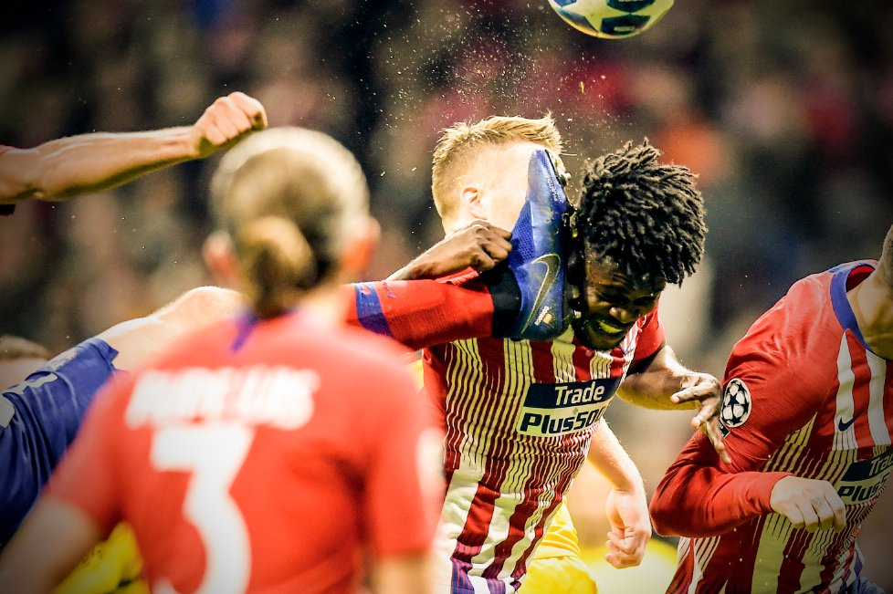 Atletico Madrid midfielder Thomas Partey suffers wicked face attack