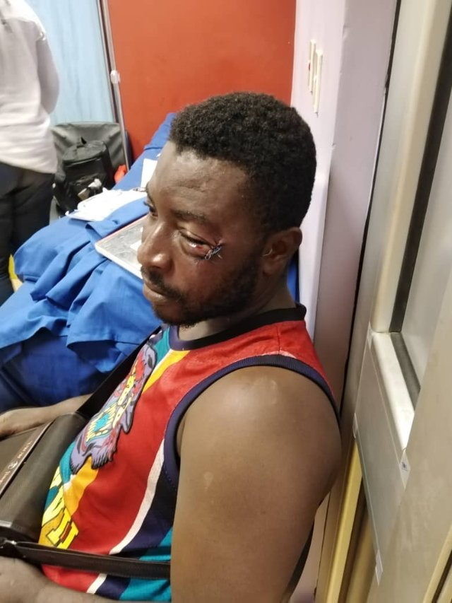 Assaulted Asante Kotoko fan breaks silence on stadium ordeal with Ghanaian boxer Patrick Allotey