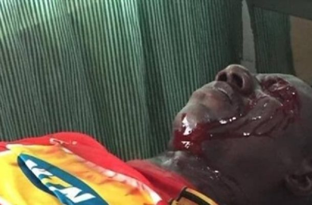 Video: Kotoko fan in critical condition after police shooting in Berekum Chelsea defeat