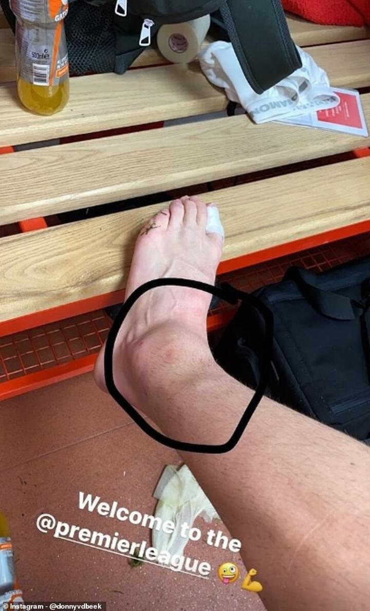 Van de Beek sparks injury fears as he shows off swollen ankle