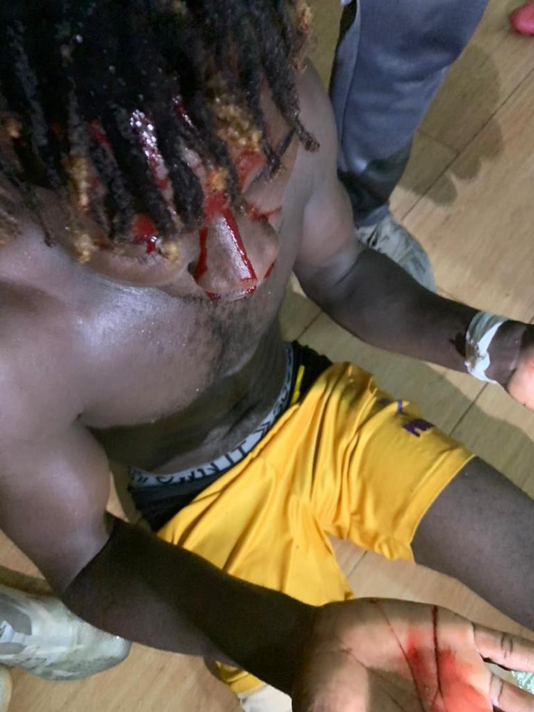 Medeama bus attacked with midfielder Eric Kwakwa in need of stitches after shocking Karela United fans attack